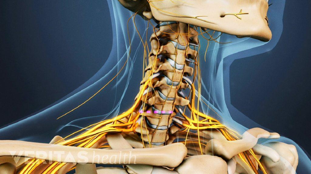 درمان دیسک گردن با ورزش